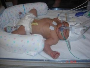 Lilee developed Group B Strep infection at birth